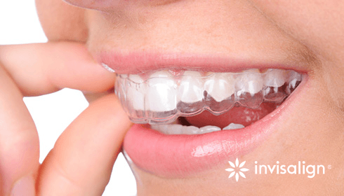 Invisalign Treatment - Total Dental Care