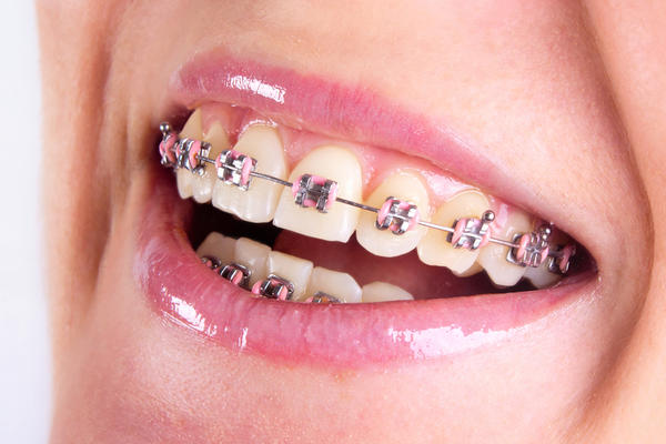 Orthodontic Braces - Guntersville, AL