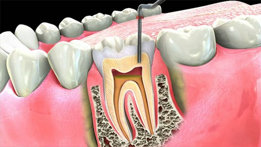 Root Canal Therapy - Gunthersville, AL