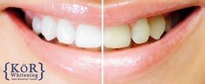 KOR teeth whitening Guntersville, AL